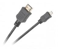 KP03877-1.8 laidas HDMI - micro HDMI, 1.8m